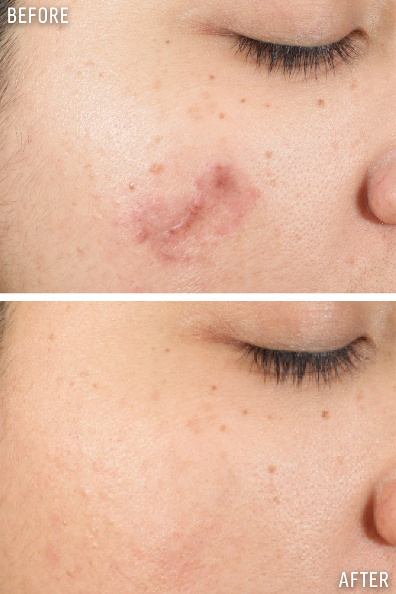 Fighting Acne