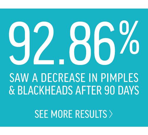 Blackhead treatment
