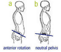 Hunter Bennett Performance. Tight hamstrings, anterior pelvic tilt, APT, posture, rehab, lordosis