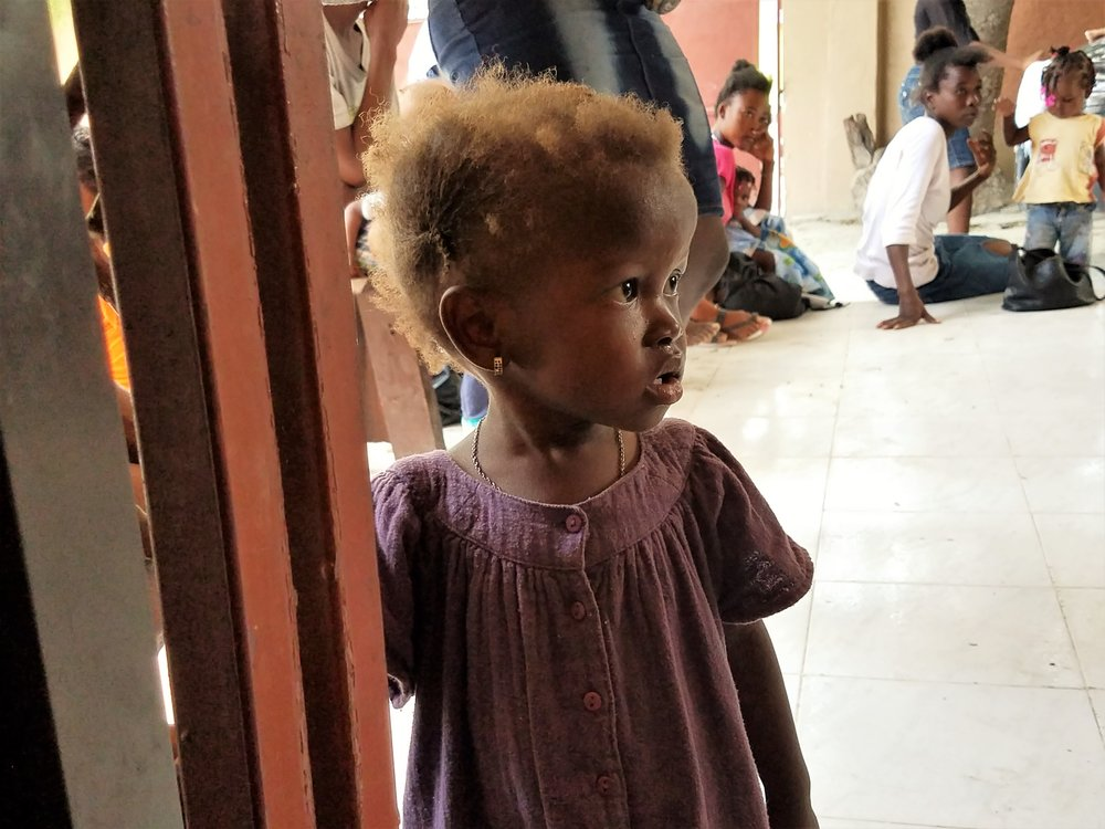Malnutrition is devastation to mind and body. Her orange hair is due to chronic malnutrition