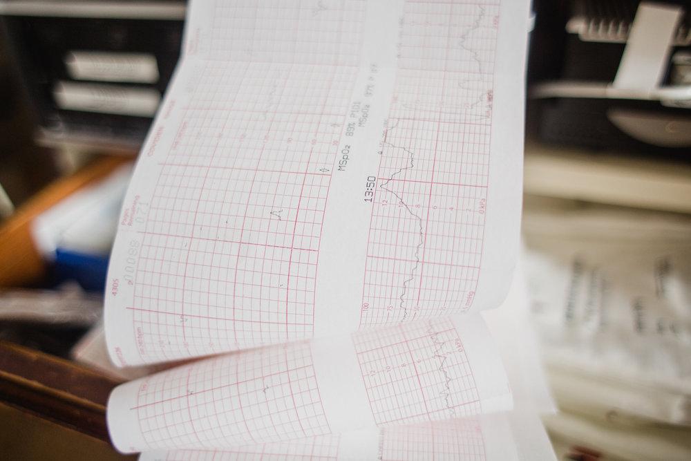 birth fetal heart monitor.jpg