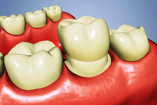 dental-crowns-1