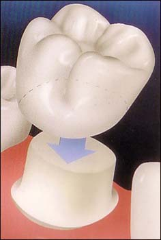 Dental crowns fit over the existing portion of the tooth.