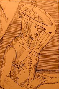 Gaspare Tagliacozzi (nasal reconstruction) –16th Century