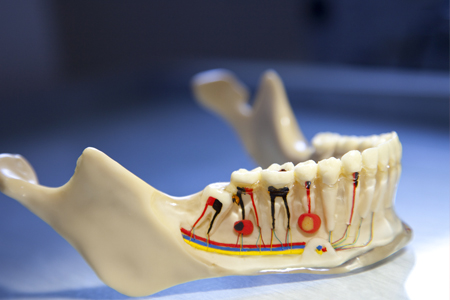 Deteriorated Dentition