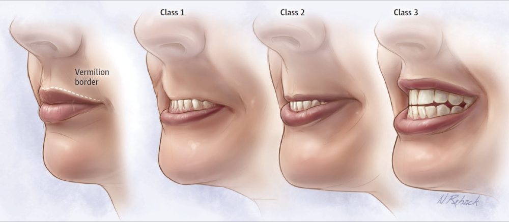 From cited article, Figure 1. Not sure if that's the vermillion border or a milk mustache…