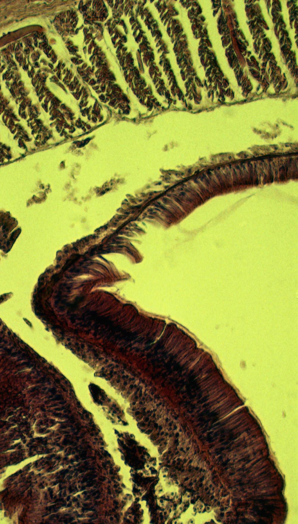 Common earthworm (Lumbricus terrestris): Cross-section