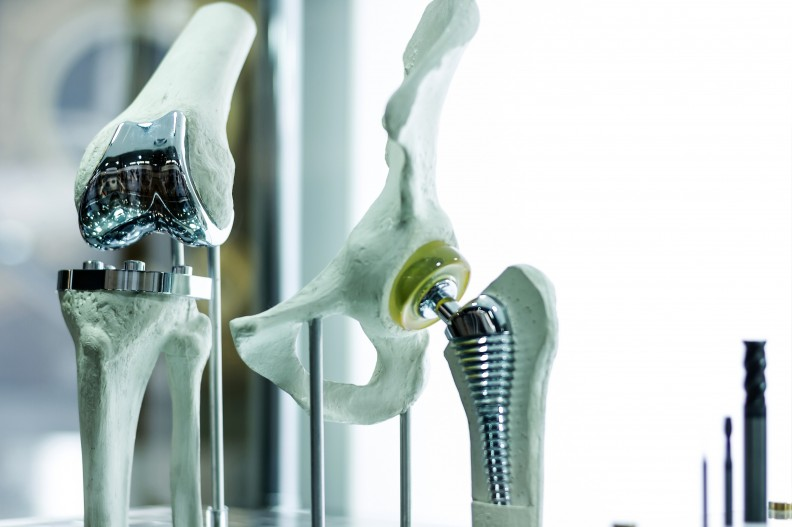 Joint Replacements and Implanted Prosthetics.jpg