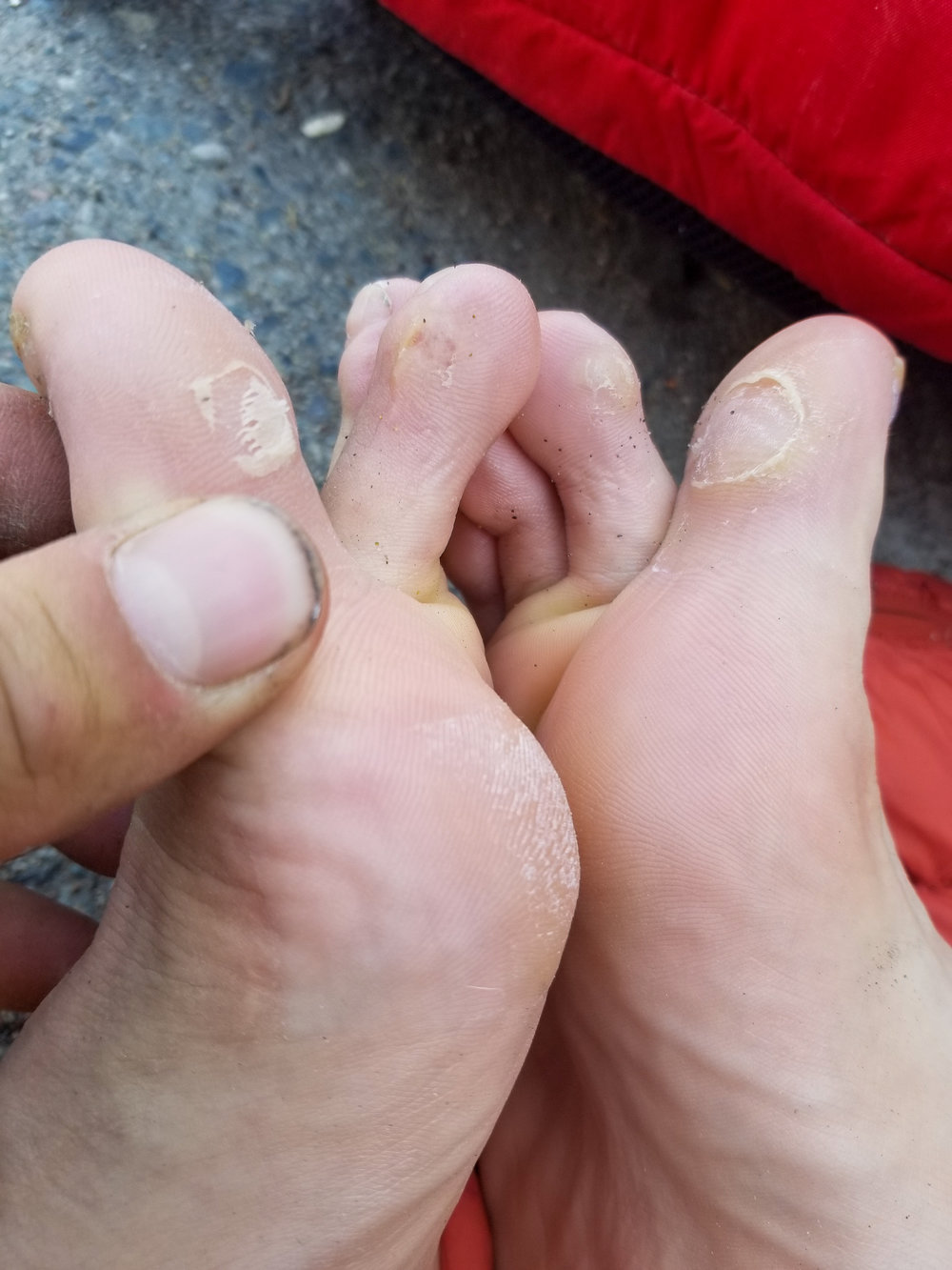 Post trip feet fun times!