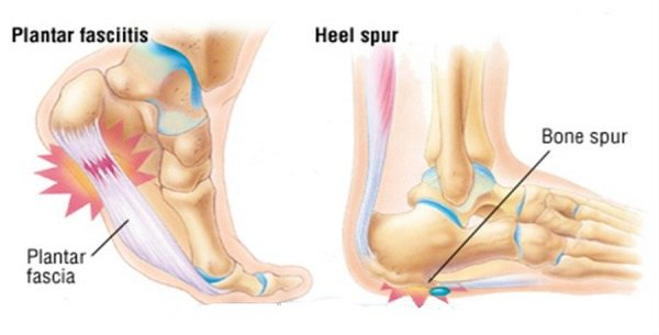 Heel pain is not due to a heel spur. You don't need a heel spur to have pain, and you don't have to have pain because you have a spur. With our without a spur, heel pain is a result of the plantar fascia being irritated.