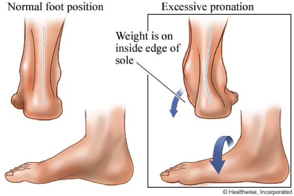 Check your feet. Look from above or ask someone to check from behind. Does it look like the left or right image above? Can you see the turning-in of the ankle? (Right image) If so, your feet are pronated.