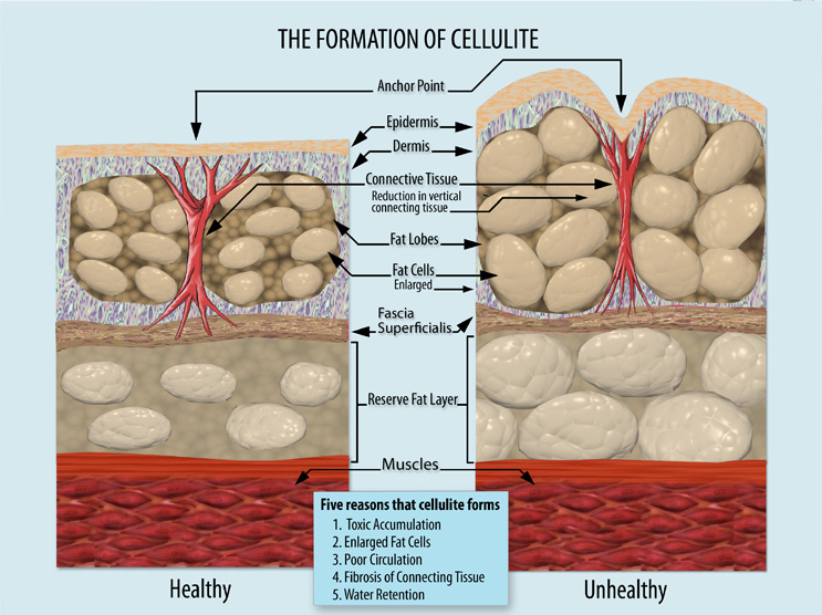 cellulite formation diagram