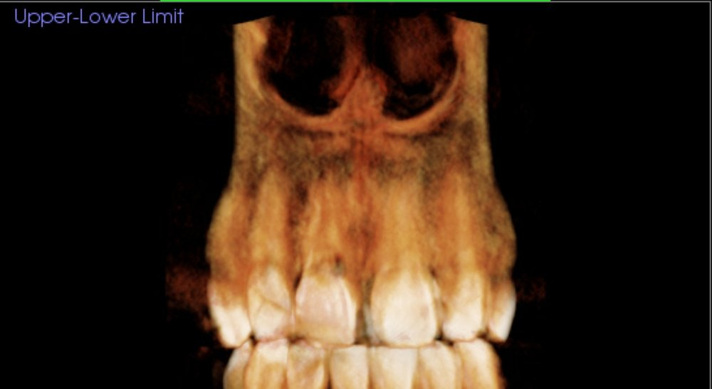 Front Tooth with Internal Resorption