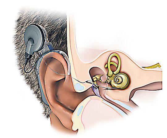 njH_IjloTrvPsEWOGEQZOg_Kochle-rny-implant-t.jpg