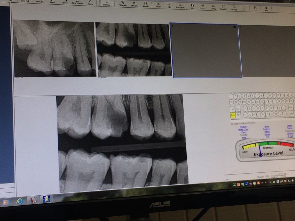 A picture of my jacked up tooth.