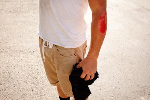day 1 / wound