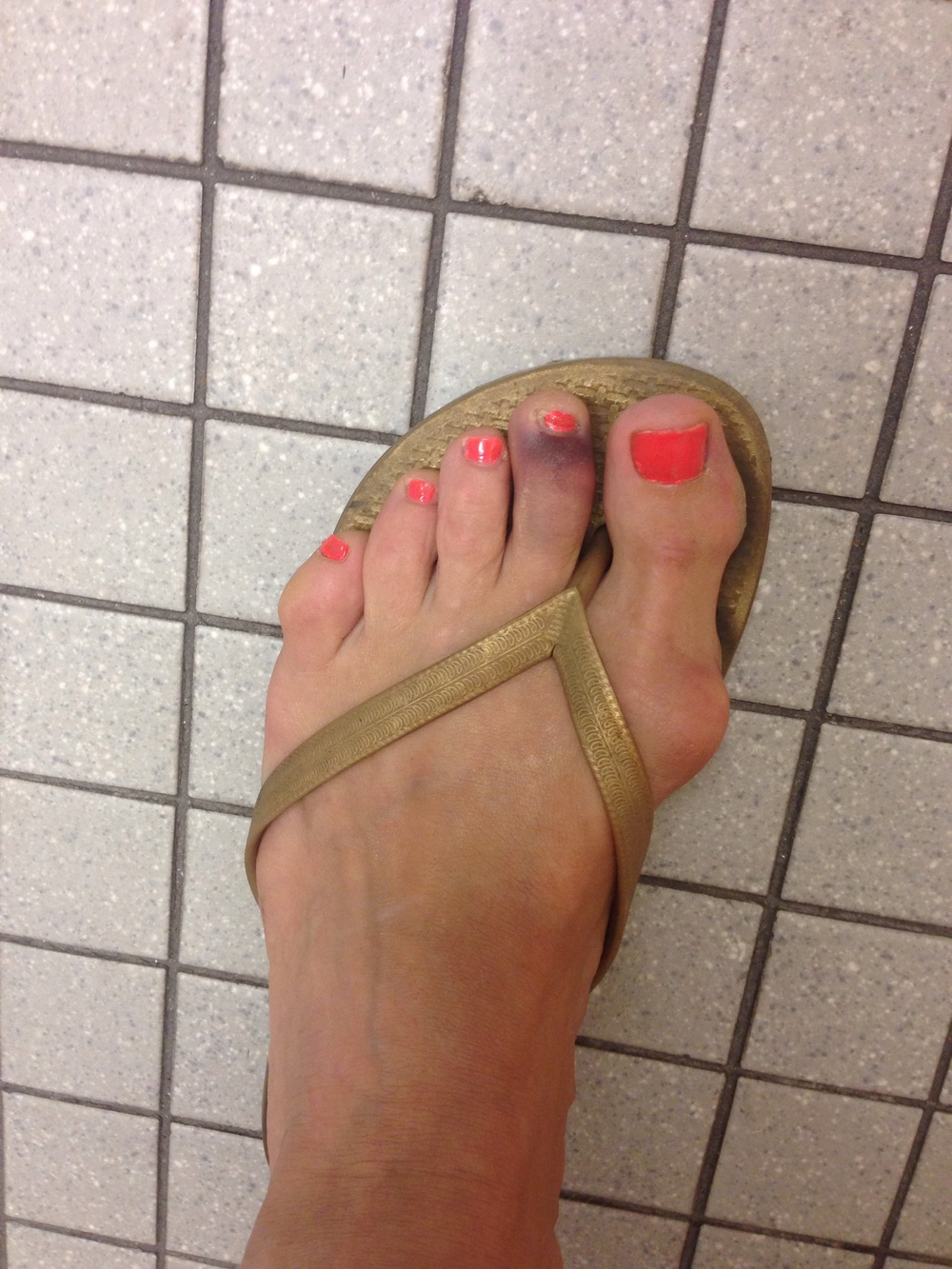 Not pretty. This is what a sprained toe looks like.