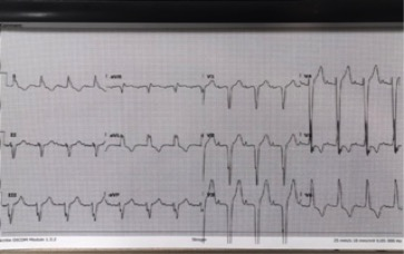 EKG1.jpg