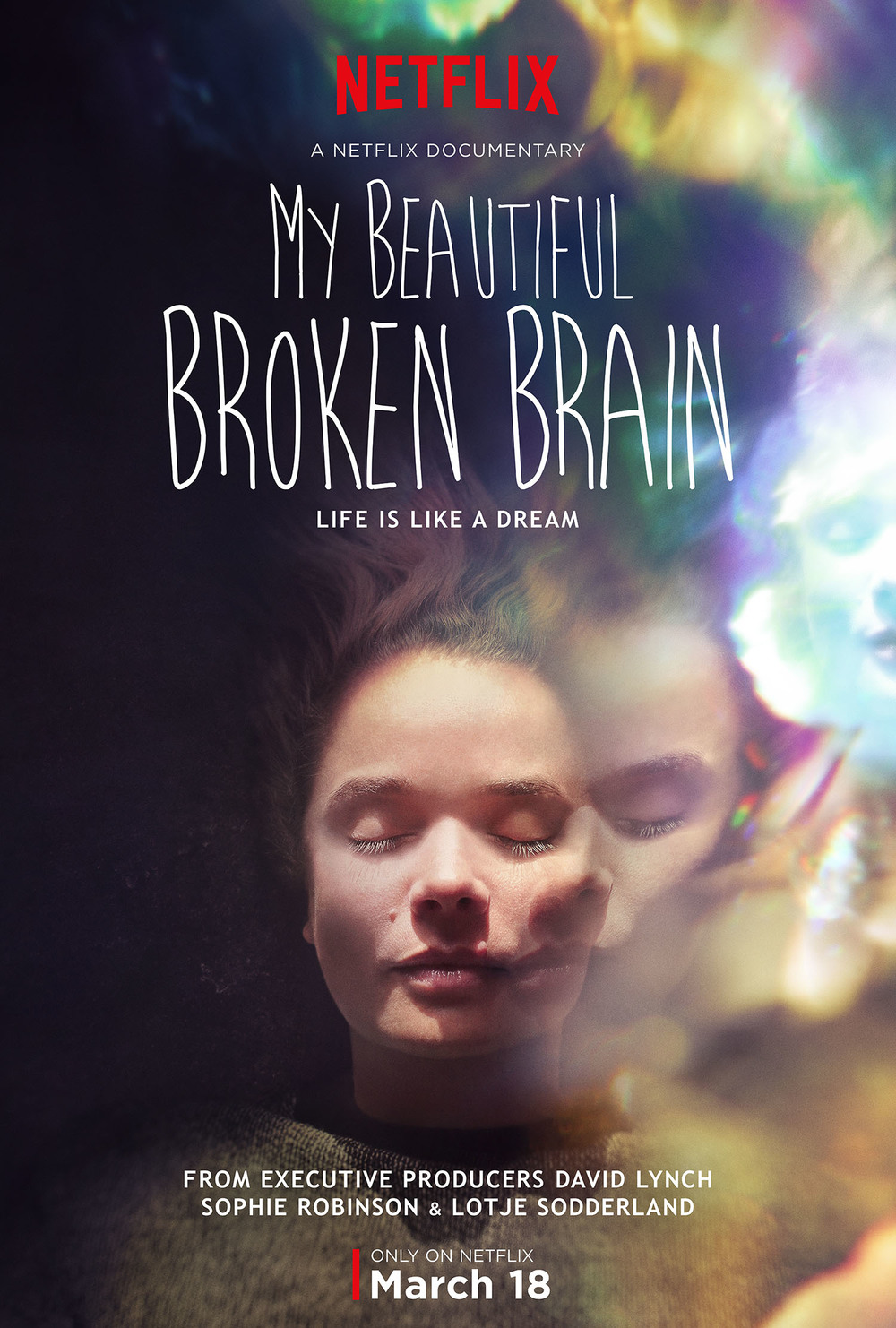 "Please go check this out: and please go to the website to learn more: http://mybeautifulbrokenbrain.com/ I can't say enough good things about the movie, and about the information in it. Brain injured patients, and brain surgery patients are a silent bunch. Once our shaved heads heal, no one knows we are there. We walk around and ""look"" normal, but our lives are a mess, and nothing is ever the same again. We work, every day, to get back, as close to normal as possible, but the best we'll ever be is a few feet away, or maybe miles."