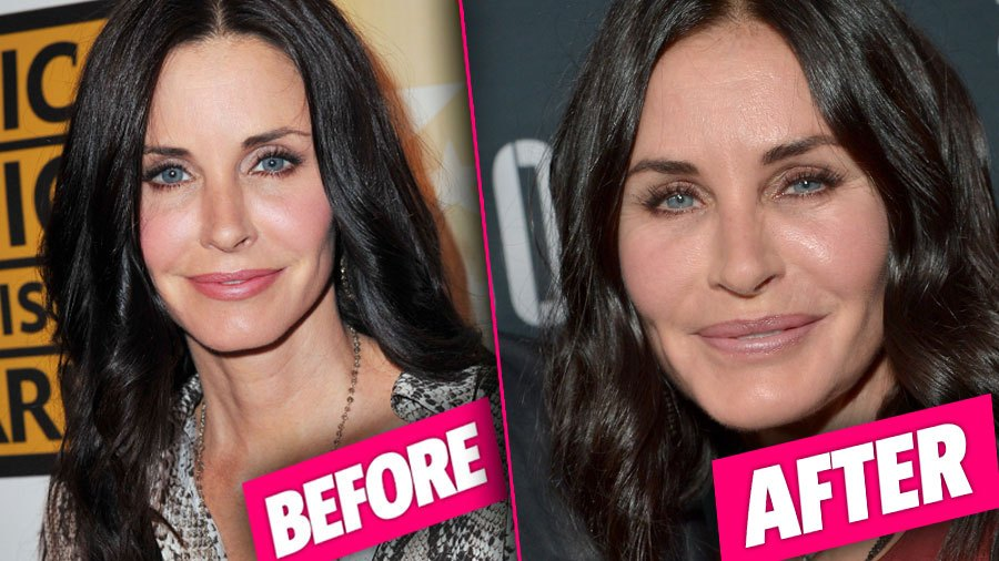 Photo Credit: Radar Online  To be fair, I read somewhere that some friends basically sat her down and told her that she was starting to look a little...well, grotesque, and she stopped with all the fillers, and she's looking much better now. Phew for that.