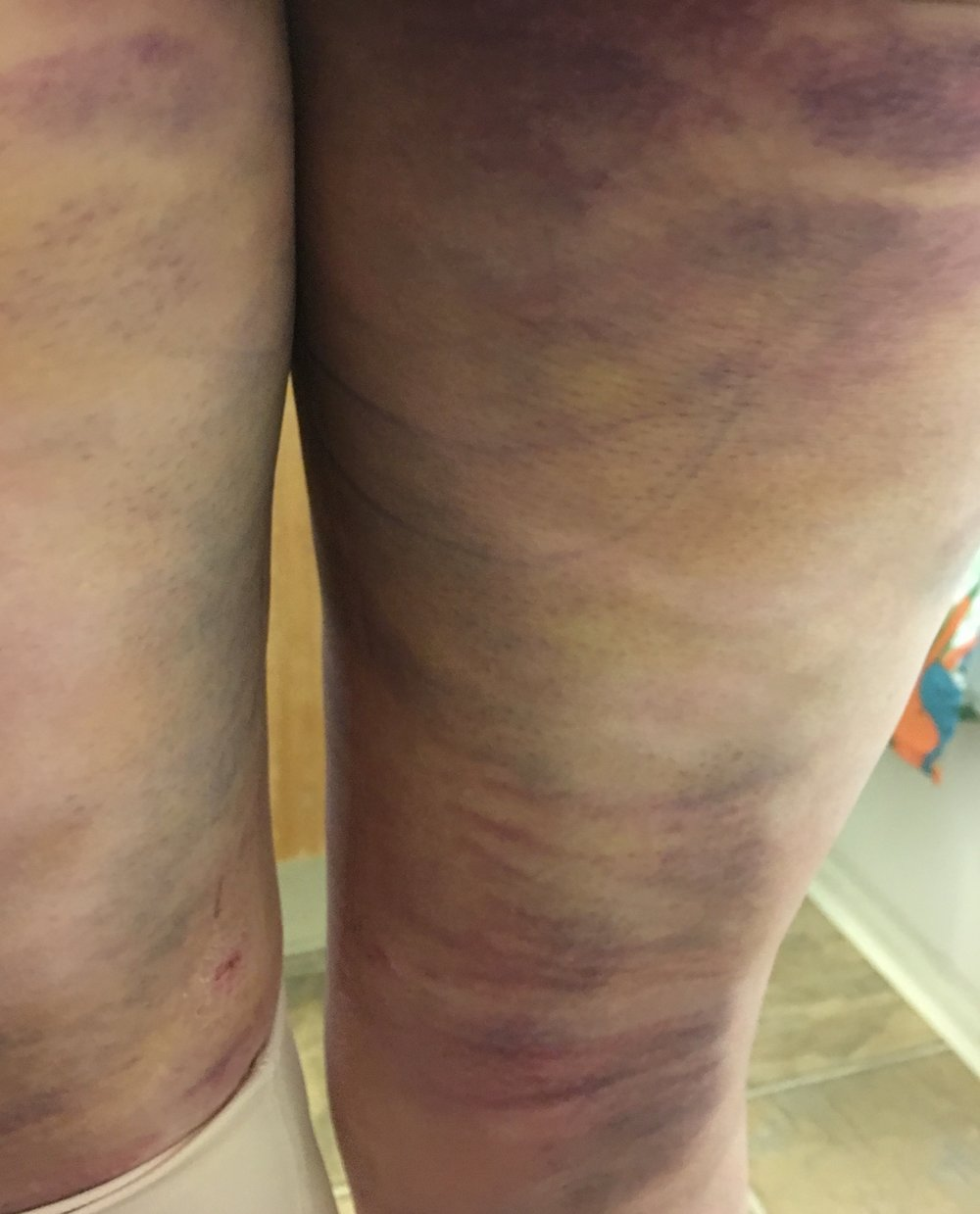 "These bruises are at five days, on the back of my legs only. So, they are looking ""better."" There are two incisions in this picture too. So, yeah, you might be able to see why going to the bathroom is my least favorite activity at the moment. I have showered, but you can see the marker still. I wasn't exactly up for scrubbing the area with much vigor! Still really, really swollen."