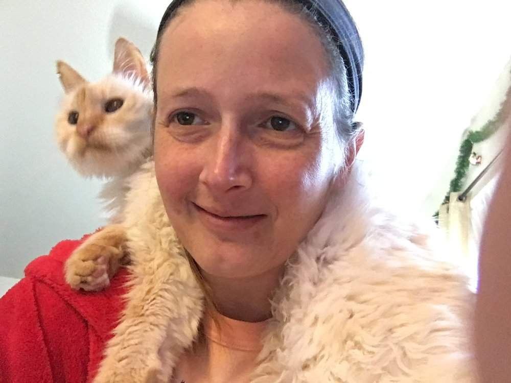 Hideous headache picture, but adorable scarf-cat picture. He really liked to be carried around and worn like this, for some reason. I've never seen such a thing! By the way, Chiari sure can make you ugly on pain days, can't it!? Look at that facial swelling! Yikes!