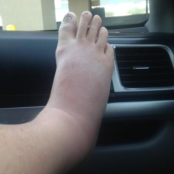RR_foot.jpg