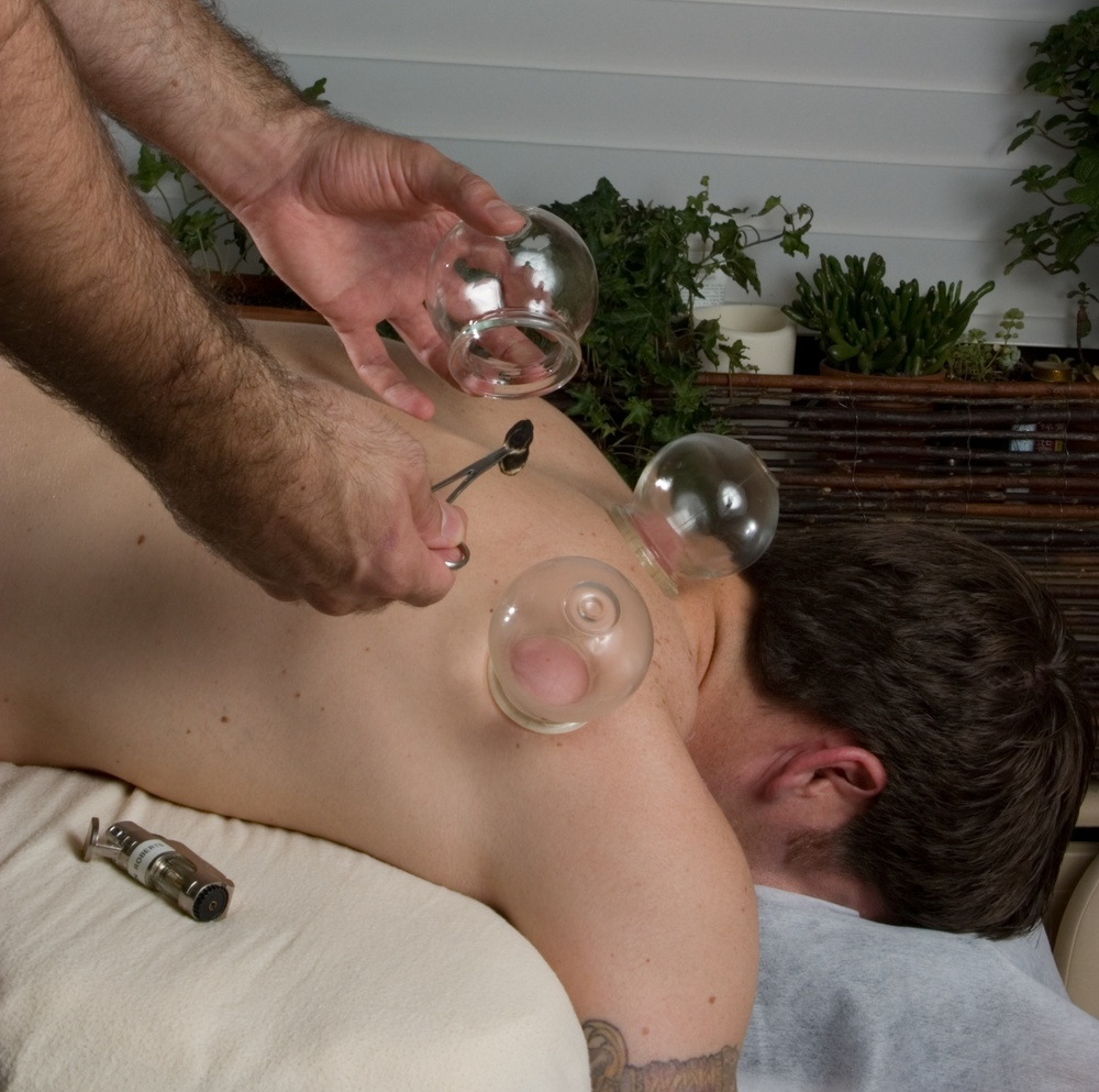 Cupping back and shoulder CROPPED.jpg