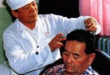 Neurosurgeon Jiao Shunfa, scalp acupuncture pioneer