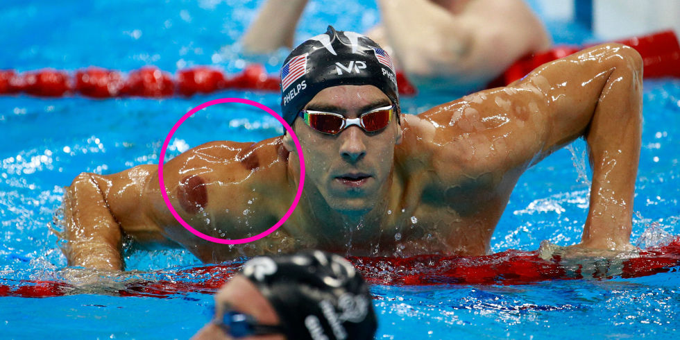 Gold medalist Michael Phelps cupped during the 2016 Olympics