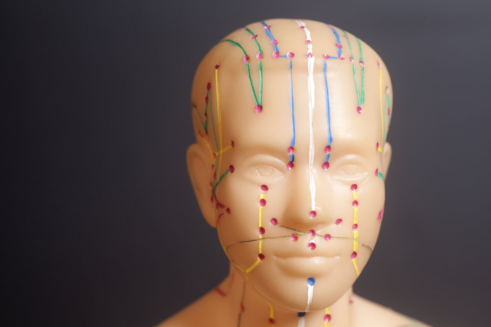 scalp acupuncture Madison WI brain injury
