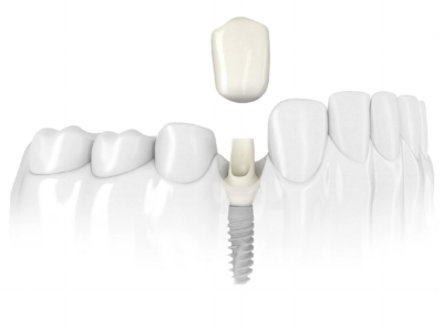 Dental IMPLANTS HAVE BECOME THE GOLD STANDARD IN TODAY'S DENTISTRY TO REPLACE MISSING TEETH.