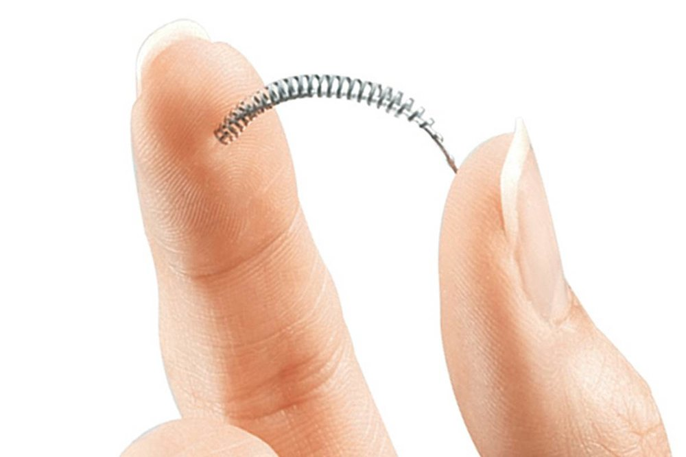 Le dispositif Essure