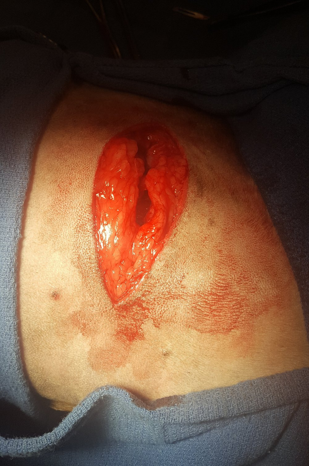 Mass removal incision