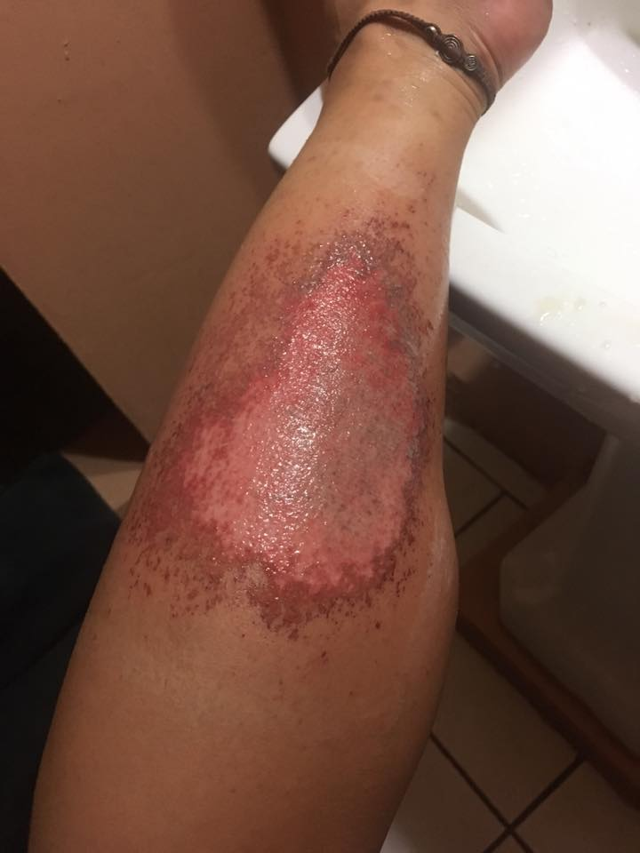 Volcano Boarding Injury