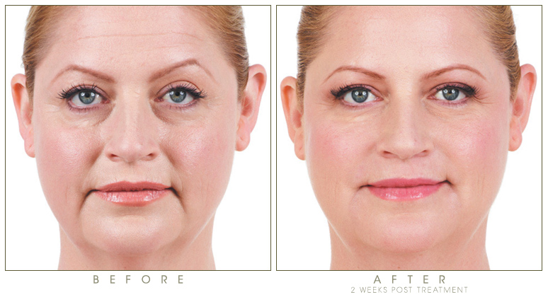 synergy_before-after-juvederm-voluma-3.jpg