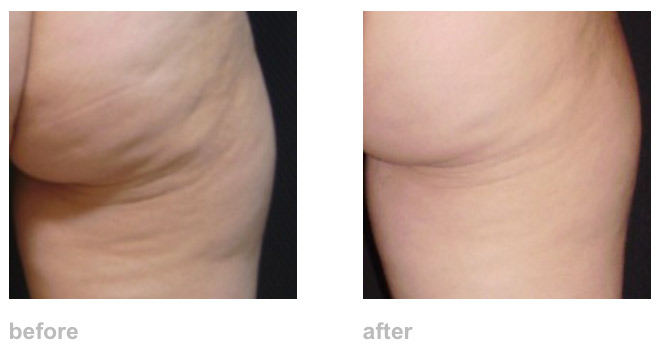 cellulite-zwave-before-after.jpg