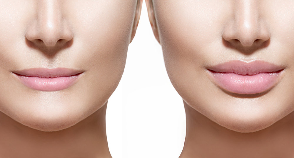 SkinSpaMED Juvederm Injections