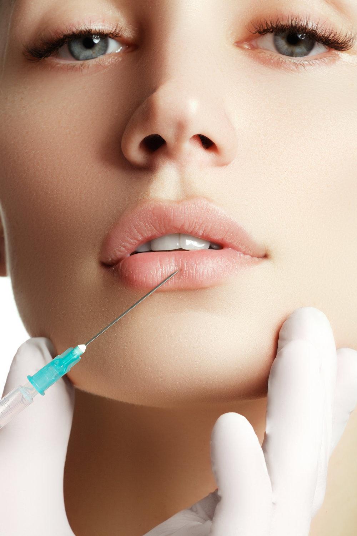 SkinSpaMED Lip Filler