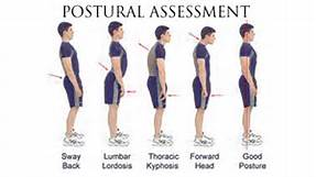 A few of the regularly seen postural abnormalities corrected with chiropractic care.