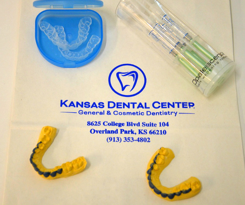 Custom Whitening Tray Package - Kansas Dental Center