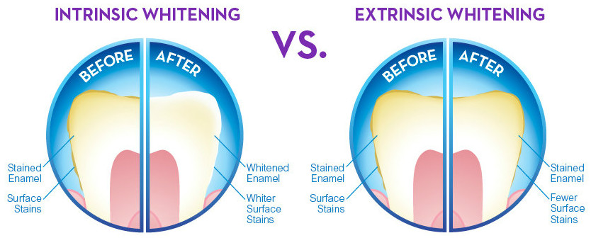 Intrinsic vs Extrinsic Tooth Stains