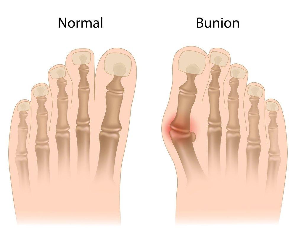 16911782_L_Bunion_Muscles_Feet_Bones.jpg
