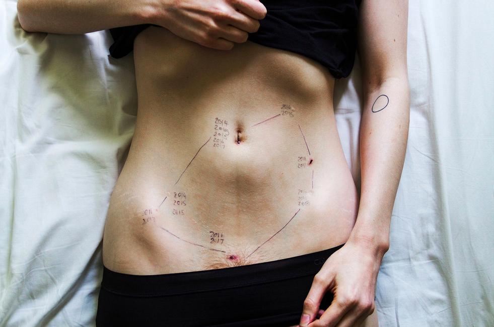 Endometriosis by Georgie Wileman