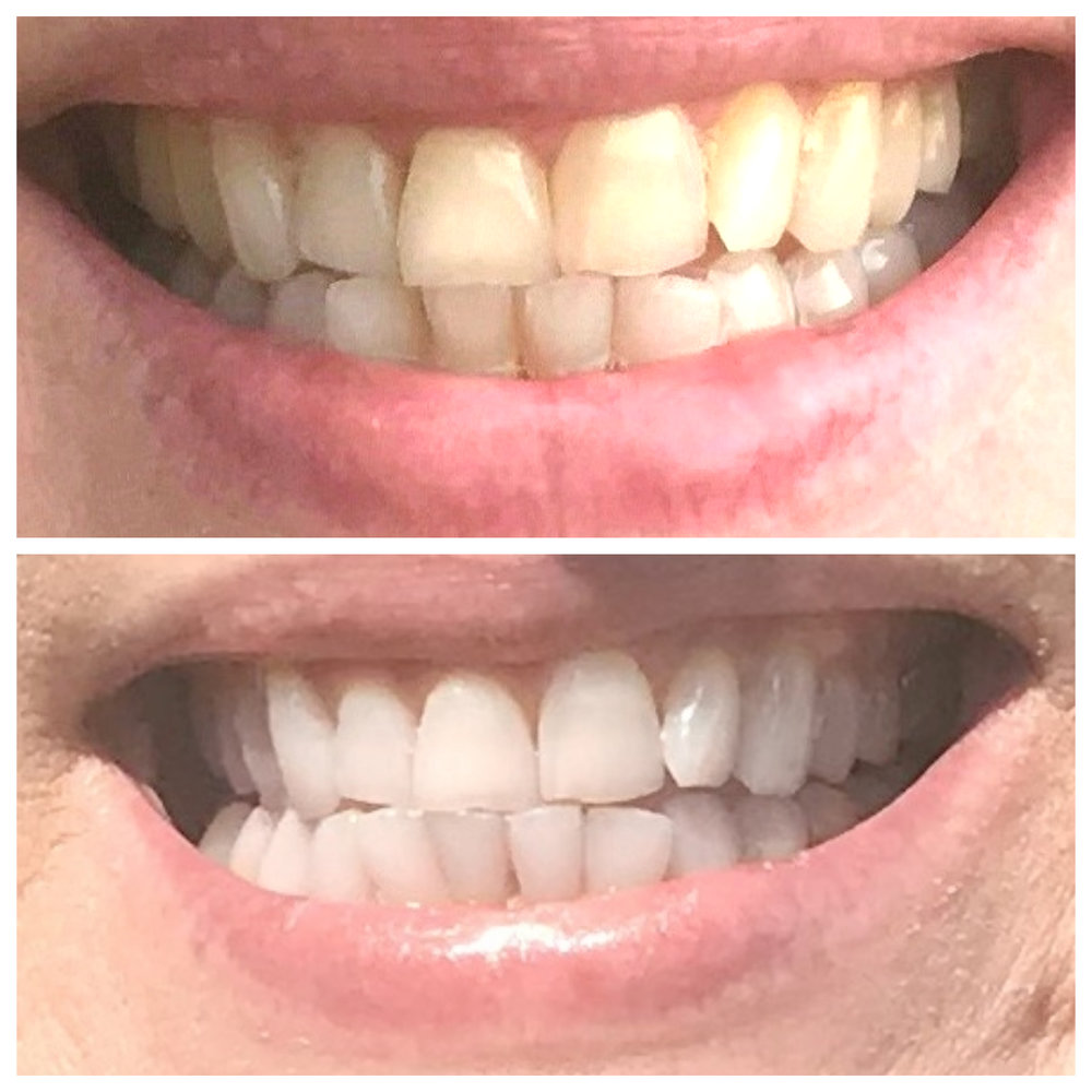 Before and after using Smile Brilliant Tooth Whitening System.