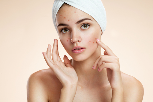 ACNE CARE I / II  70 mins / 90 mins 1 Session $120 / $150 10 Sessions $1000 / $1200