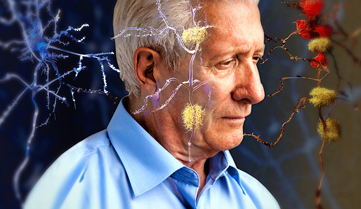 Newly published research led by the Yale School of Public Health demonstrates that individuals who hold negative beliefs about aging are more likely to have brain changes associated with Alzheimer's disease.