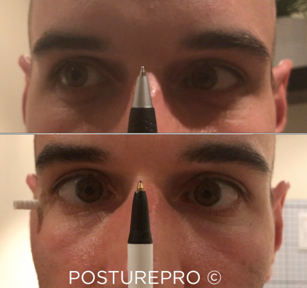 Eye convergence: Before and After.