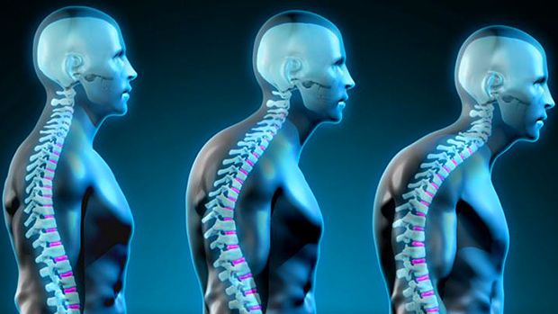 As the thoracic spine rounds more, the neck compensates to try to keep the eyes level. This is less-than-ideal.