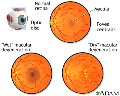 Age-Related Macular Degeneration -  In some people, AMD advances so slowly that vision loss does not occur for a long time. In others, the disease progresses faster and may lead to a loss of vision in one or both eyes. As AMD progresses, a blurred area near the center of vision is a common symptom. Over time, the blurred area may grow larger or you may develop blank spots in your central vision. Objects also may not appear to be as bright as they used to be.AMD by itself does not lead to complete blindness, with no ability to see. However, the loss of central vision in AMD can interfere with simple everyday activities, such as the ability to see faces, drive, read, write, or do close work, such as cooking or fixing things around the house.